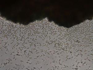 Conidia of Microdochium nivale
