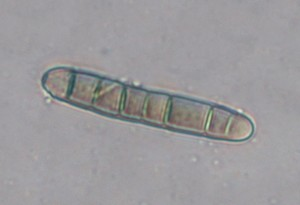 Drechslera erythrosphila conidium. Photo: Sabrina Tirpak, Rutgers PDL