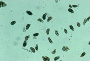 Conidia of Curvularia lunata. Photo: Richard Buckley, Rutgers PDL