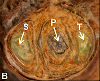 Cross sections of grapevine compound buds showing the location of primary (P), secondary (S), and tertiary (T) buds. P bud is dead, while S and T buds are alive;