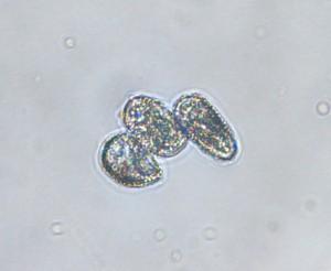 Fir-fern rusts produce white aeciospores. Photo: Sabrina Tirpak, Rutgers PDL