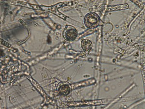 Pythium spp. hyphae and reproductive propagules (oogonia). Photo: Sabrina Tirpak, Rutgers PDL