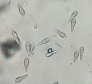 Pyricularia oryzea conidia are produced in great numbers and are highly mobile. Photo: Sabrina Tirpak, Rutgers PDL
